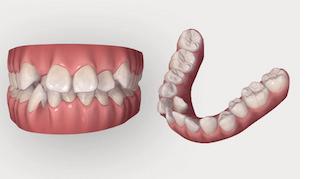 1,自分の歯並びをすぐに確認できる